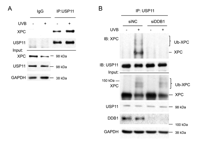 UVB induces USP11 interaction with XPC dependent on XPC ubiquitination levels.