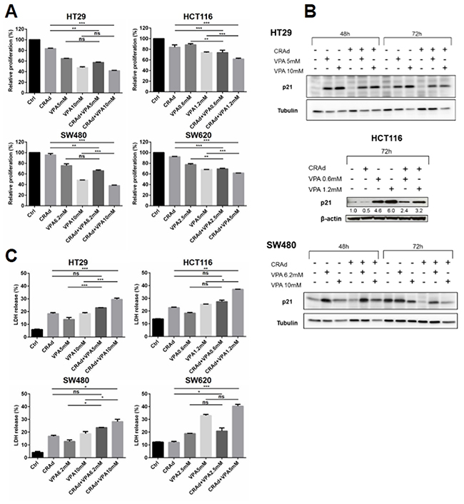Inhibition of proliferation and increase in cell death of CRC cell lines after combined treatment with CRAd and VPA.