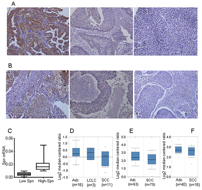 Loss of Spinophilin in human tumors.