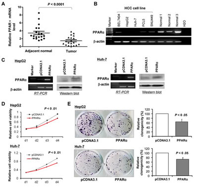 PPARα is down-regulated in human HCCs and cell lines and its expression suppresses proliferation of HCC cells in vitro.