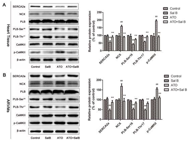 Effect of Sal B on Ca2+ handling protein levels after ATO treatment.