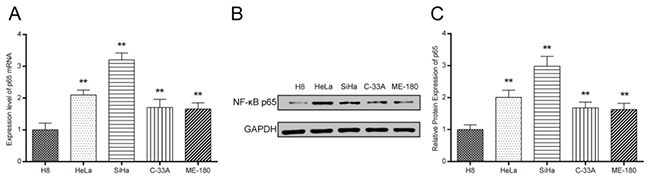 The expression of NF-κB p65 in different cervical cancer cell lines and human cervical epithelial cells H8.