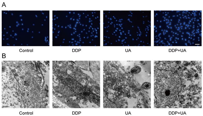 UA promoted DDP-induced SiHa cell morphological changes.