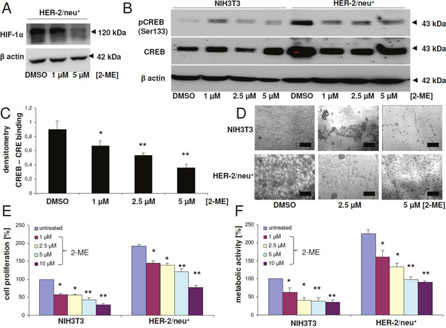 Modulation of CREB activity, proliferation and metabolic activity upon treatment with the HIF-1α inhibitor 2-methoxyestradiol.