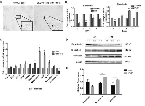 PMPs induce EMT of Ovarian cancer cells.