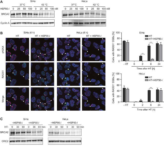 HSP90 inhibitor Ganetespib potentiates the effects of hyperthermia (HT) on HR.