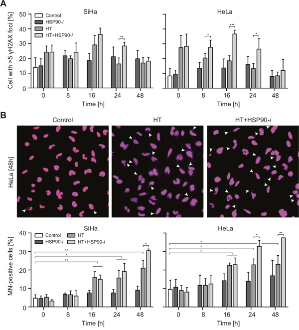 Inhibition of HSP90 enhances induction of DNA damage by hyperthermia (HT).