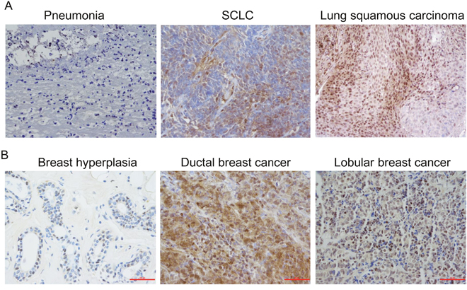 Immunohistochemical analysis of Jab1/COPS5 in cancer tissues.