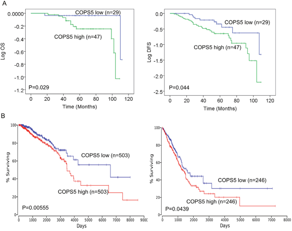 Jab1/COPS5 predicts survival in lung and breast cancer.