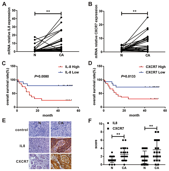 Expression and survival significance of IL8 and CXCR7 in patients with EC.