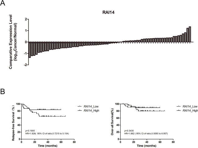 RAI14 expression status in 71 patients and cumulative probability of relapse-free survival and over-all survival for patients with lung adenocarcinoma.