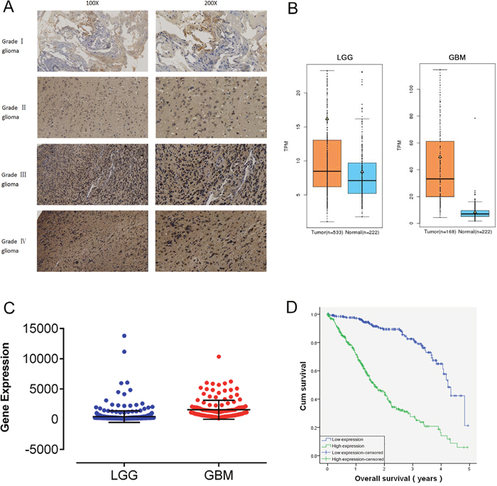 RDH10 is over-expressed in human gliomas and predicts a high grade and poor prognosis.