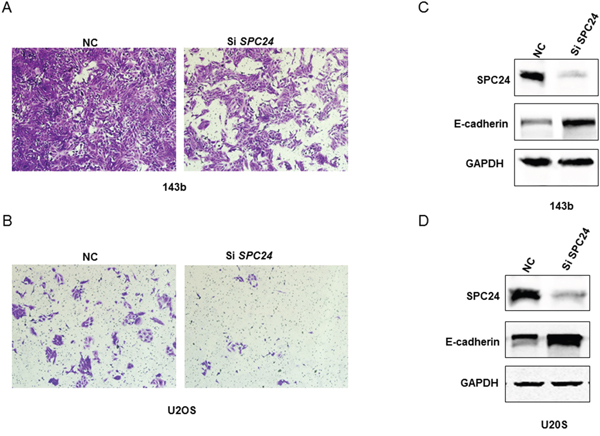 SPC24 knockdown increases invasiveness and EMT in 143B and U2OS cells.