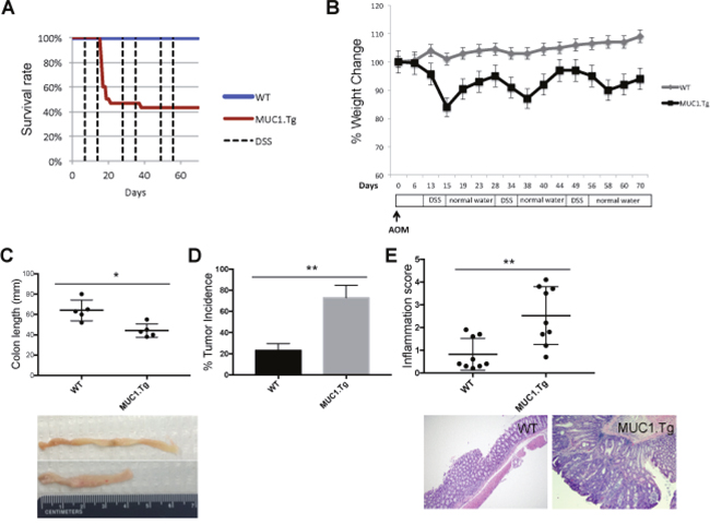 MUC1 promotes inflammation and tumorigenesis in AOM/DSS-treated mice.