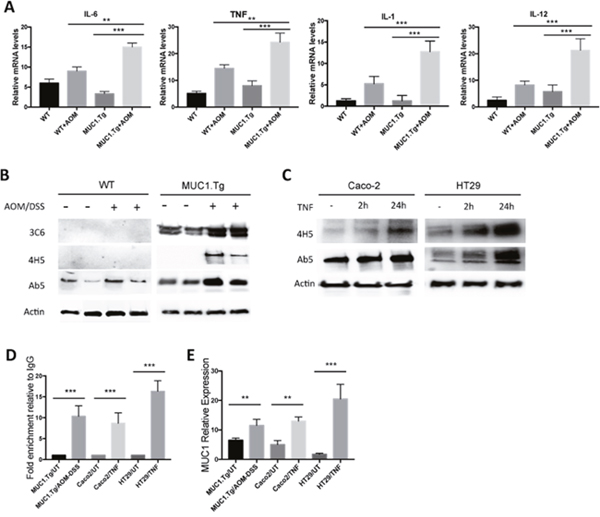Chronic Inflammation promotes MUC1 expression via NF-κB activation.