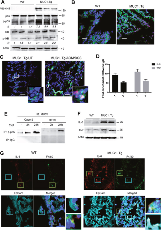 MUC1 promotes expression of NF-κB-dependent pro-inflammatory cytokines in IECs after AOM/DSS administration.