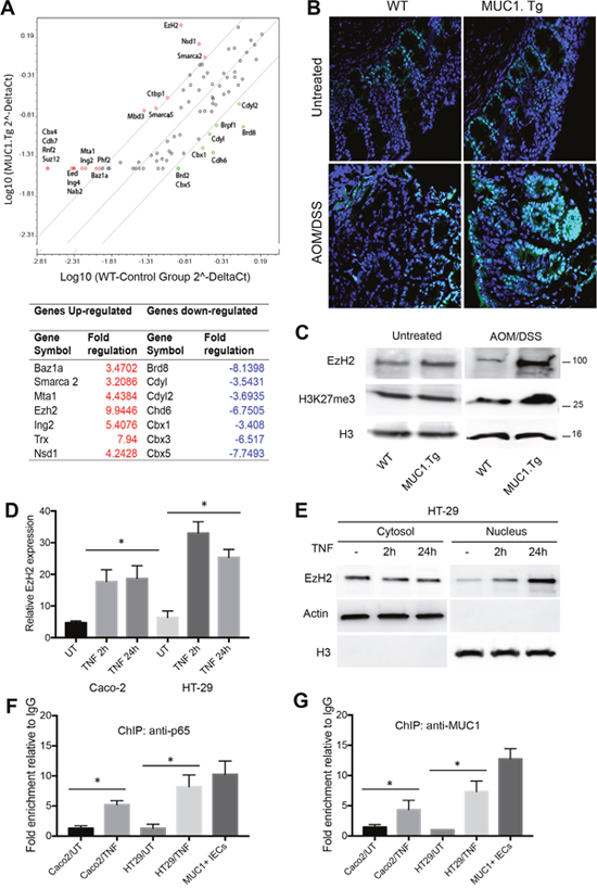 AOM/DSS-treatment up-regulated EzH2 expression via NF-κB pathway activation in IECs of MUC1.Tg.