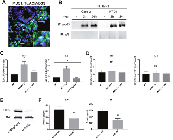 EzH2 regulates inflammatory cytokines expression in MUC1+ IECs from AOM/DSS-treated mice.