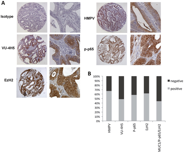 Co-expression of hypoglycosylated MUC1 with p-p65 and EzH2 in colon adenocarcinoma.