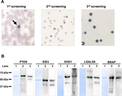 SEREX screening and western blot analysis of recombinant GST-fusion proteins.