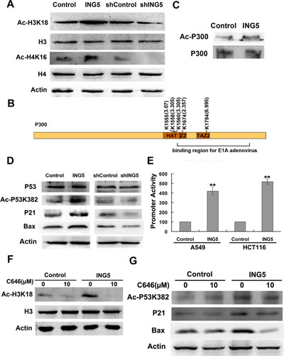 ING5 overexpression promotes histone acetylation and p300 autoacetylation.