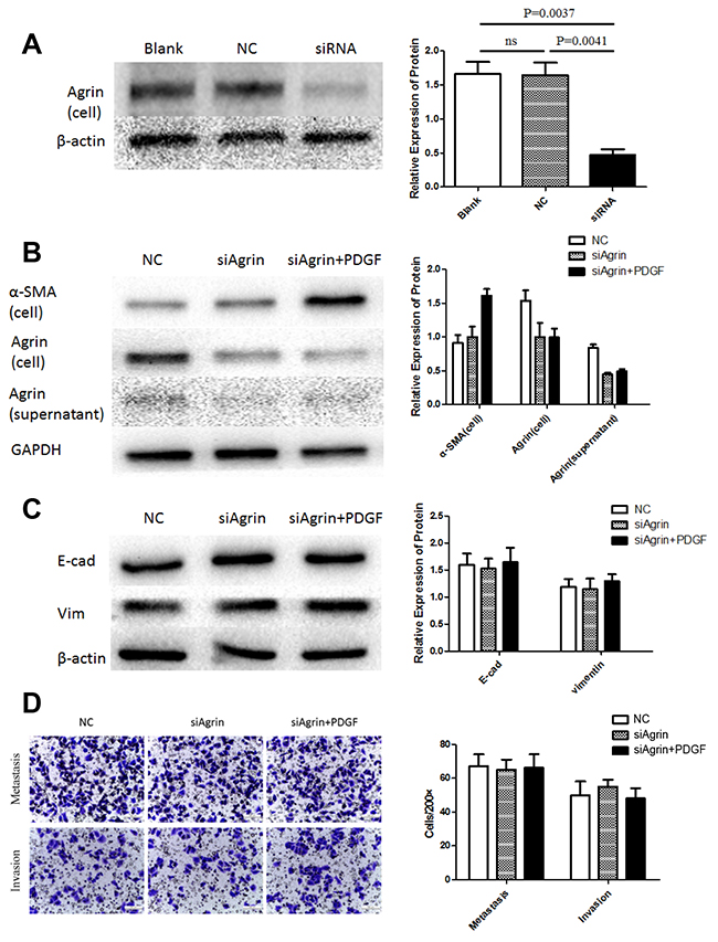 Agrin knockdown and its effect on migration and EMT in LX2 cells.