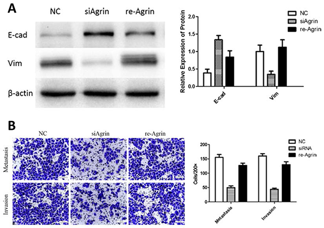 Effect of recombinant agrin on invasion and metastasis of SMMC-7721 cells.