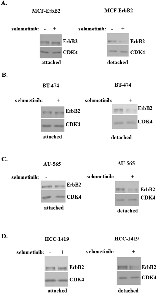 Mek activity is required for ErbB2 expression in breast cancer cells detached from the ECM.