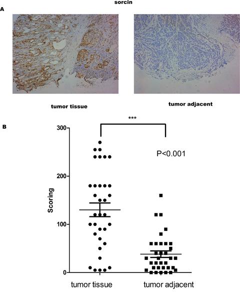 Sorcin levels were higher in GC tissue than in adjacent normal tissue.