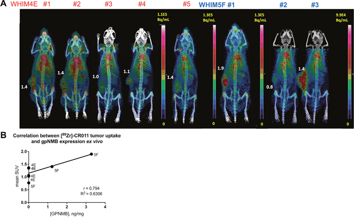 PET/CT imaging of [89Zr]DFO-CR011 in PDX models of TNBC at 7 days post-injection.