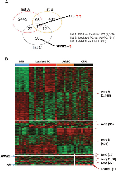 Differentially expressed genes in the prostate tissue samples from the next-generation sequencing (NGS) cohort.