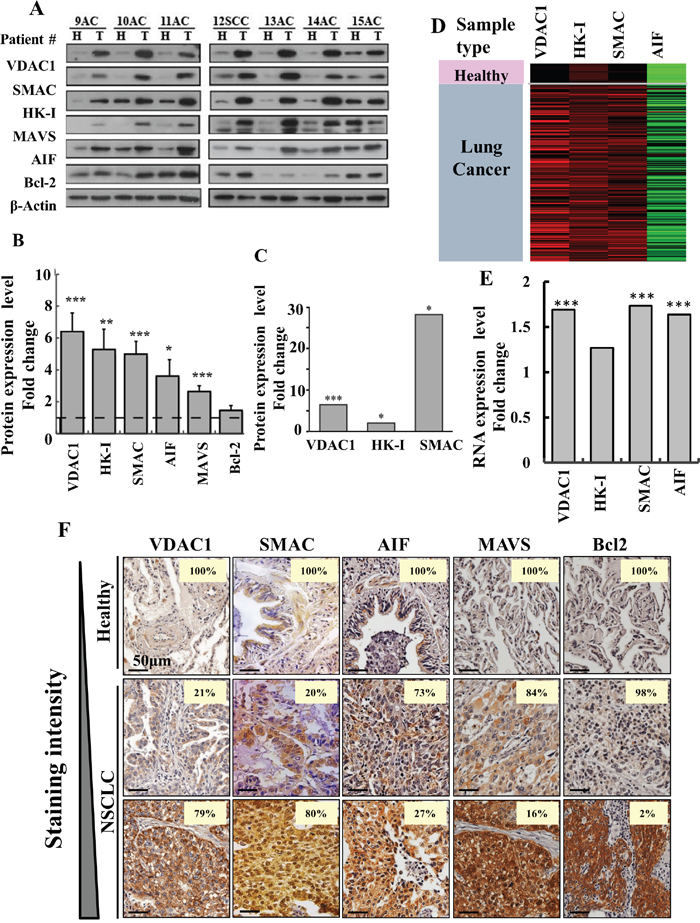 Over-expression of VDAC1 and other apoptosis- and energy-related proteins in lung cancer patients.
