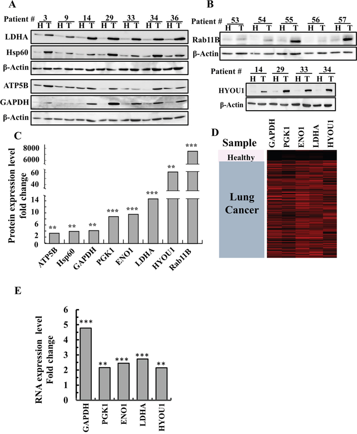 Over-expression of newly identified proteins in lung cancer patients.