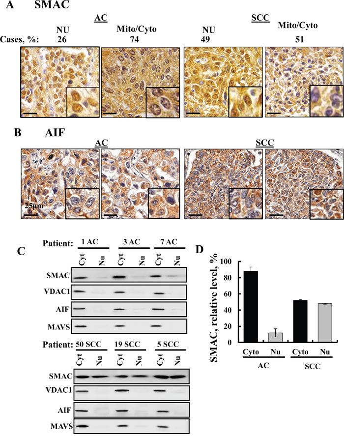 SMAC sub-cellular localization in lung cancer.