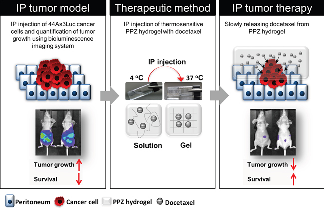 Peritoneal carcinomatosis therapy model using injectable thermosensitive biodegradable hydrogel with docetaxel.