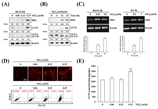 NiCl2 induces autophagy and up-regulates HK2 and LCN2 in human bronchial epithelial cells.
