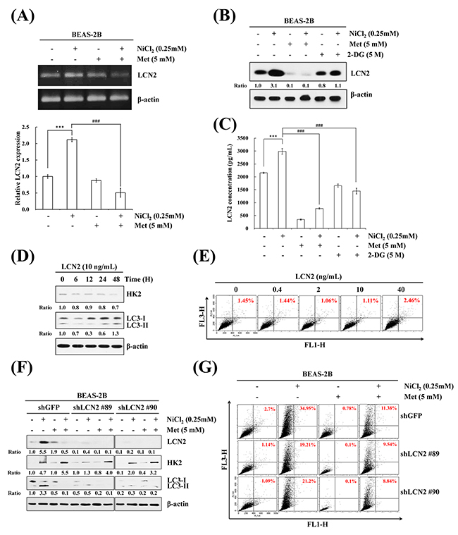 LCN2 is involved in NiCl2-induced autophagy in human bronchial epithelial cells.