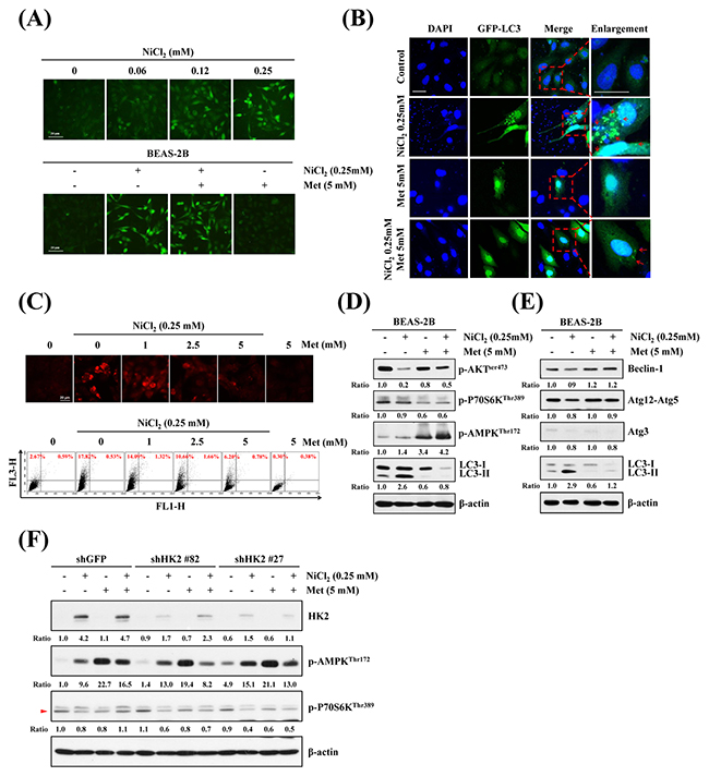 Effects of metformin on NiCl2-mediated autophagy in human bronchial epithelial cells.
