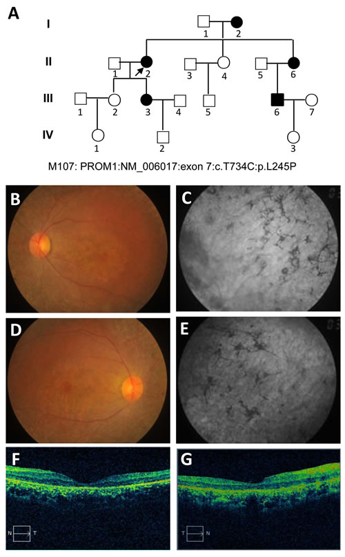 Pedigree of the M107 family with autosomal dominant Stargardt4-like macular dystrophy and clinical assessment of affected proband.
