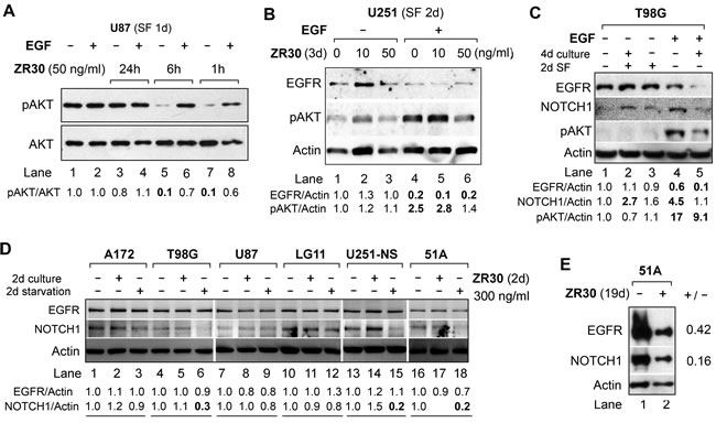 Effect of ZR30 on EGF-mediated activation of EGFR signaling and NOTCH1 expression by immunobloting.