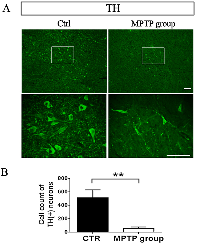 TH-positive neurons in SNpc decreased after MPTP injection.