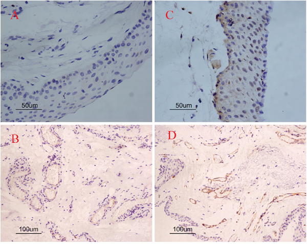 Single immunoreactivity stained with COX-2 and CD31 in pterygia.