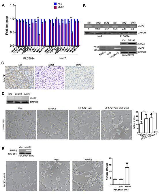 MMP-2 is required for EIF5A2-induced angiogenesis in HCC.