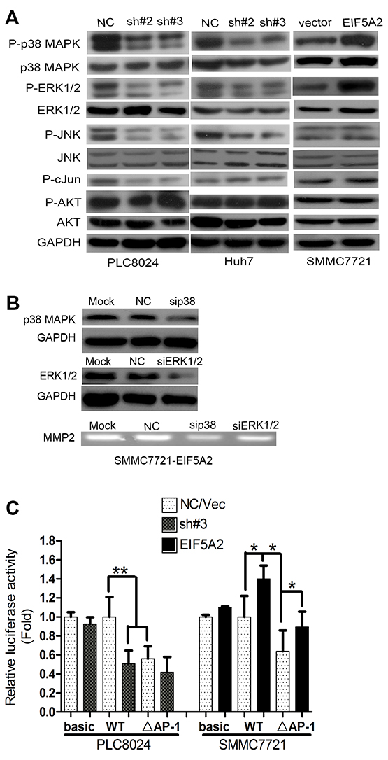 EIF5A2 induces MMP-2 transcription by activating p38 MAPK and JNK/c-Jun pathways.