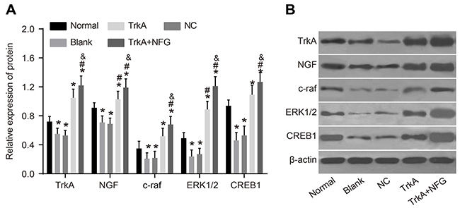 Protein expression of NGF/TrkA signaling pathway-related proteins in rat penile corpus cavernosum.