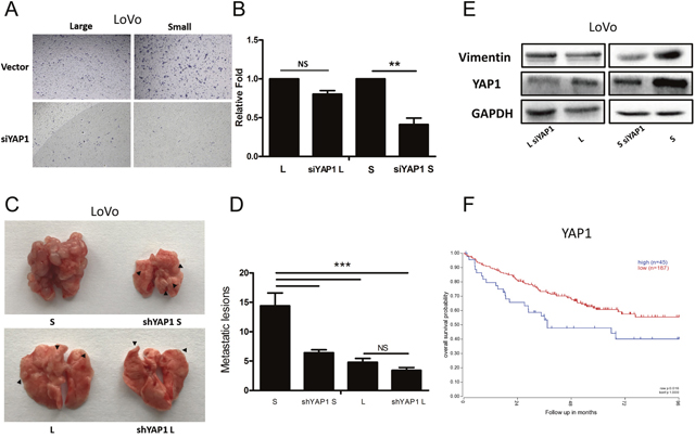 YAP1 regulates tumorigenicity and lung metastatic potential in small cells but not large CRC cells.