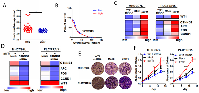 WT1-promoted HCC progression was associated with Wnt/β-catenin pathway.