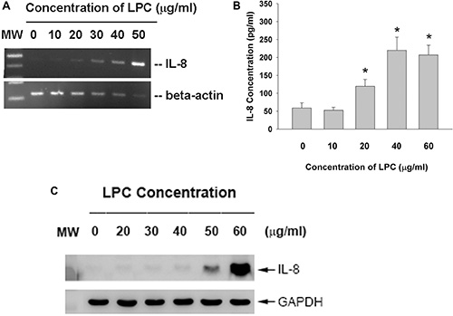 Effect of LPC on IL-8 expression and production.