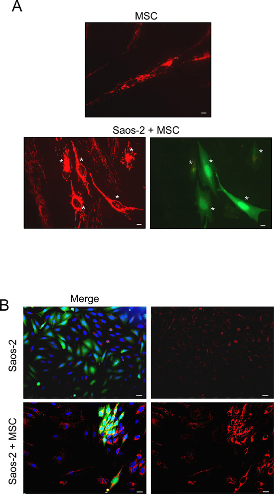 MSC-Saos-2 cell co-cultures exhibit changes in the mitochondrial state