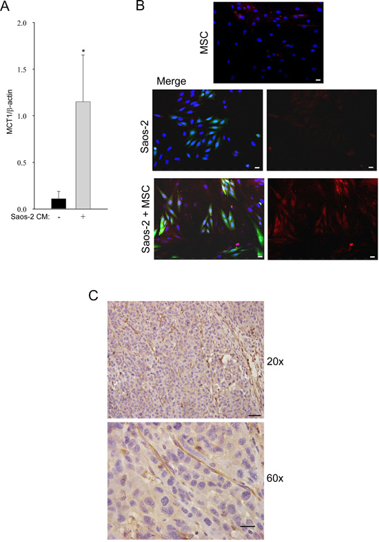 Tumor-activated MSC induce high MCT-1 expression in Saos-2 cells.